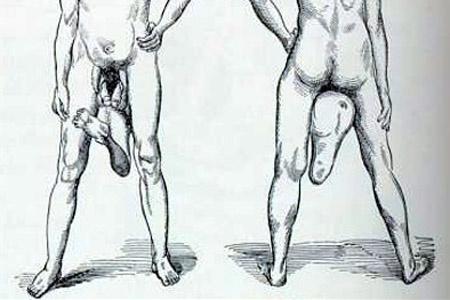 két péniszű férfi