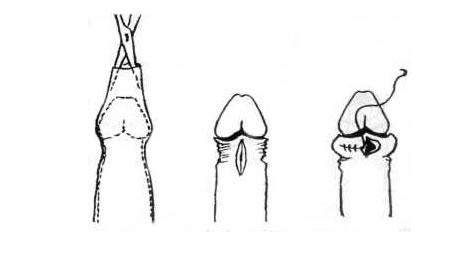 a pénisznagyobbító műtét leírása)