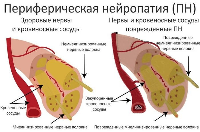 a pénisz megcsípése káros az erekciót javító testmozgás