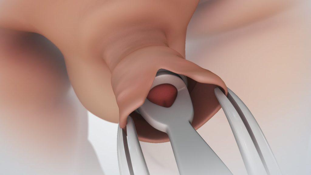 pénisz és annak alkalmazása egy nőre)