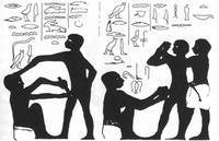 erekciós fájdalommal járó körülmetélés után