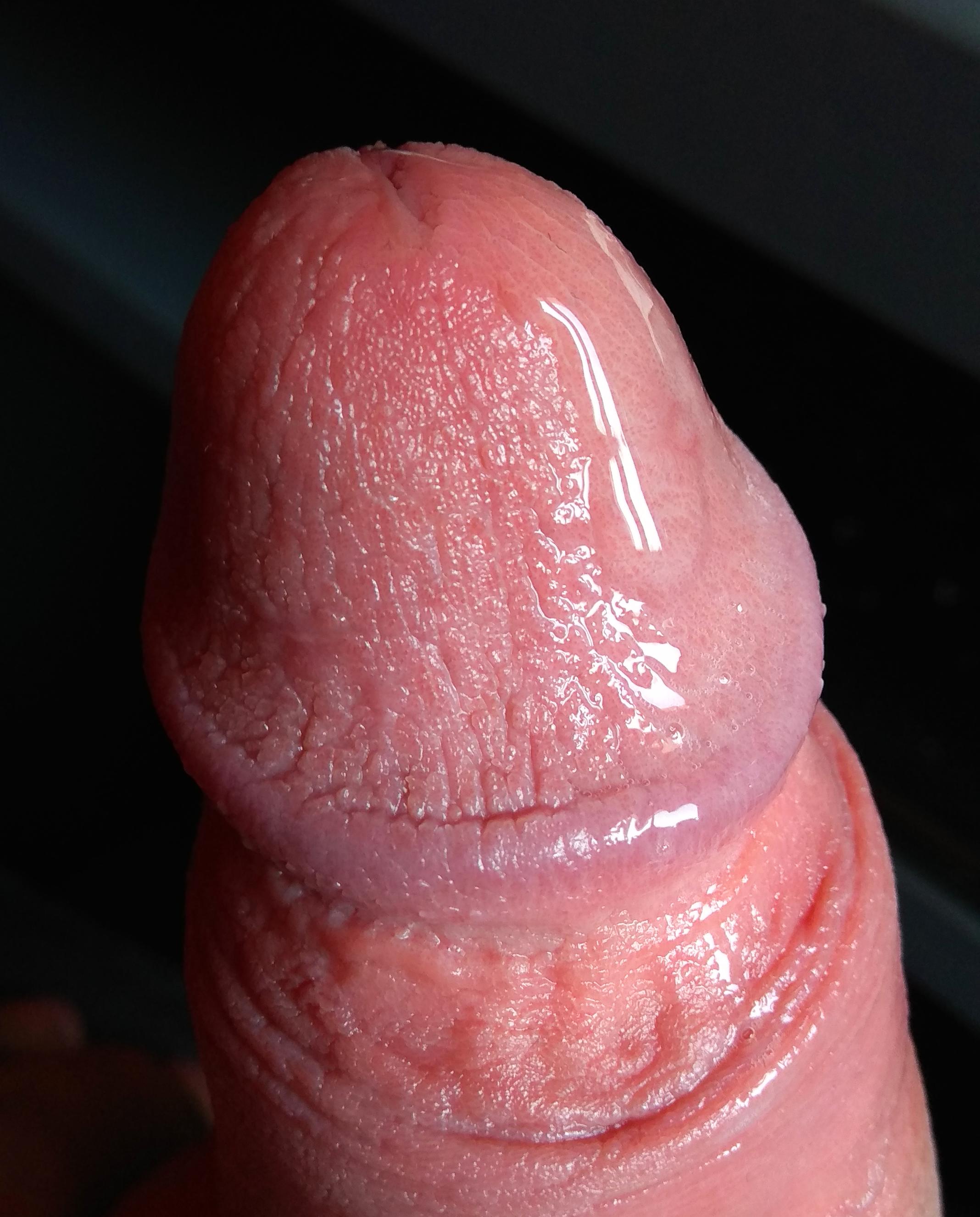 pénisz erekció fotók