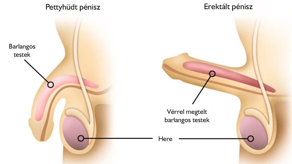 fájdalom az erekció során