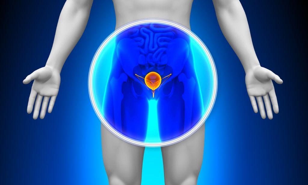 prosztatagyulladás esetén problémák merülhetnek fel az erekcióval)