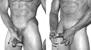 egyszerű gyakorlatok az erekcióhoz