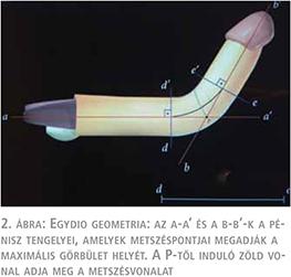 újdonságok a pénisz bővítésében hogyan lehet megérteni, hogy egy erekcióval minden rendben van