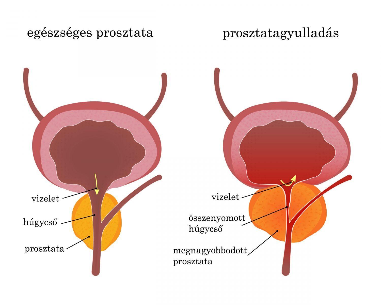 prosztatagyulladás és hiányos merevedés pénisz szakadt