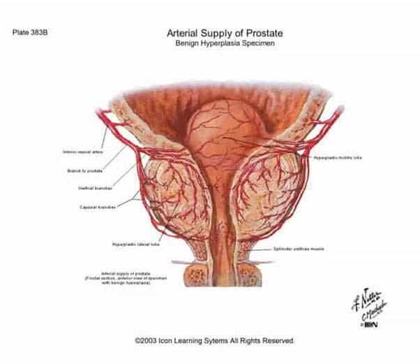 a rossz erekció tünetei