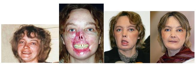 Fitymafék műtét - Urológia | Med-Aesthetica
