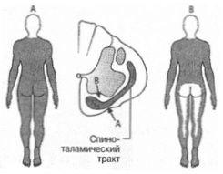 merevedés és ágyéki osteochondrosis)