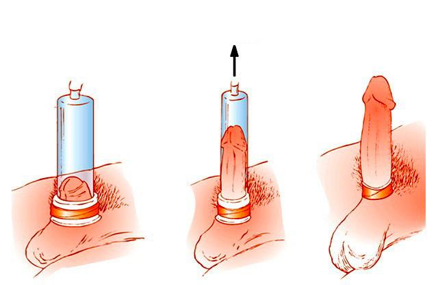 hogyan kell helyesen használni a péniszgyűrűket