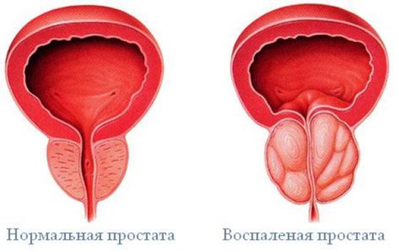 az erekció és a prosztatagyulladás gyengülése