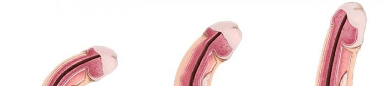 A 10 különböző pénisz típus és hogyan kell kezelni mindegyiket