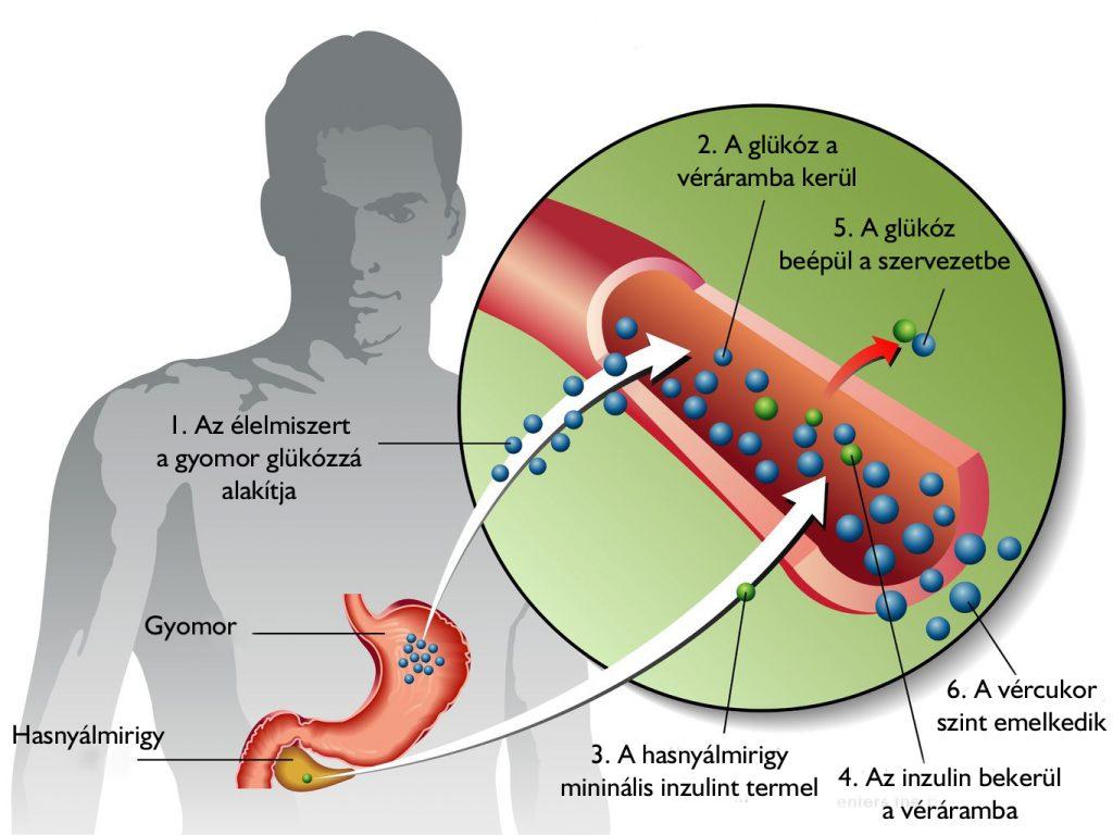 típusú cukorbetegség és erekció