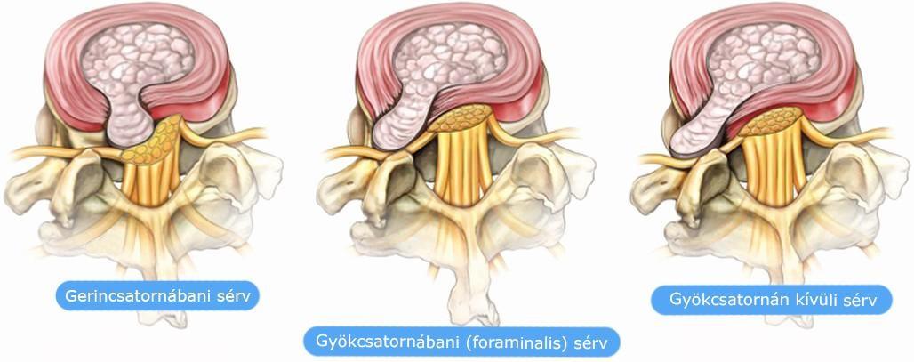 gerincsérv-erekció