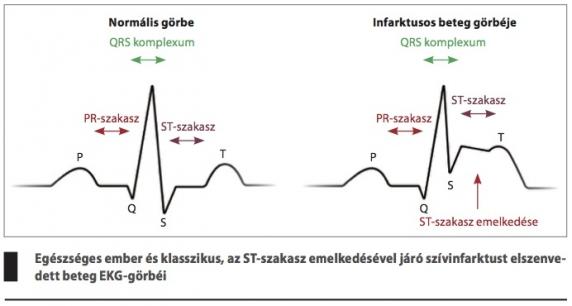 szívinfarktus erekció)