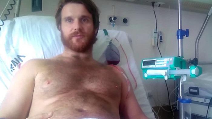 erekció férfiak műtétjén