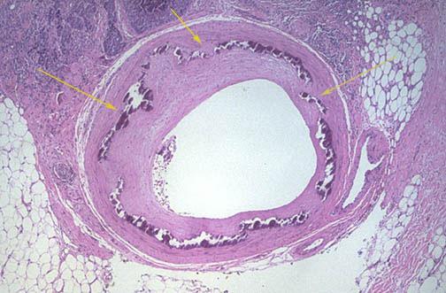 Kiütések a nemi szerveken: okok és kezelés - Chicken pox