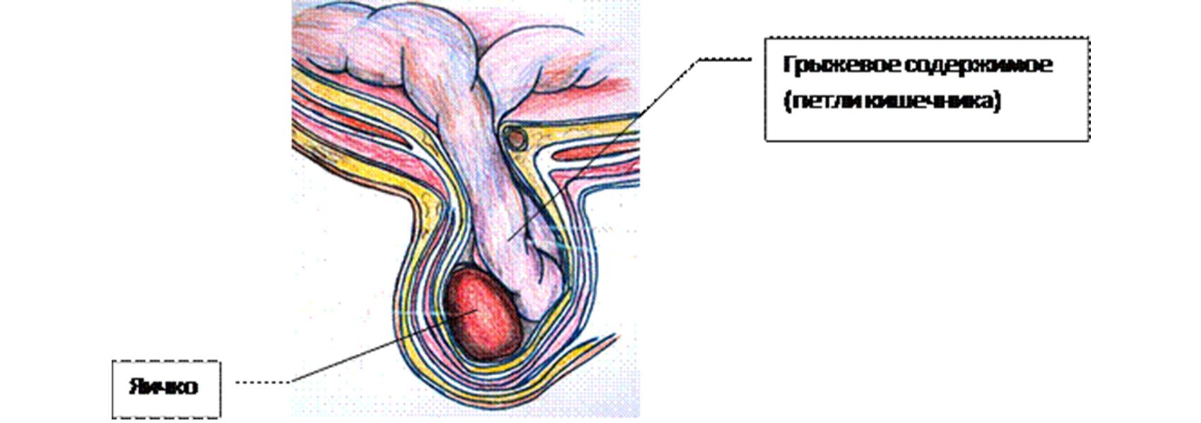 Sérvműtét (Lágyéksérv, Köldöksérv, Combsérv, Gyomortáji sérv)