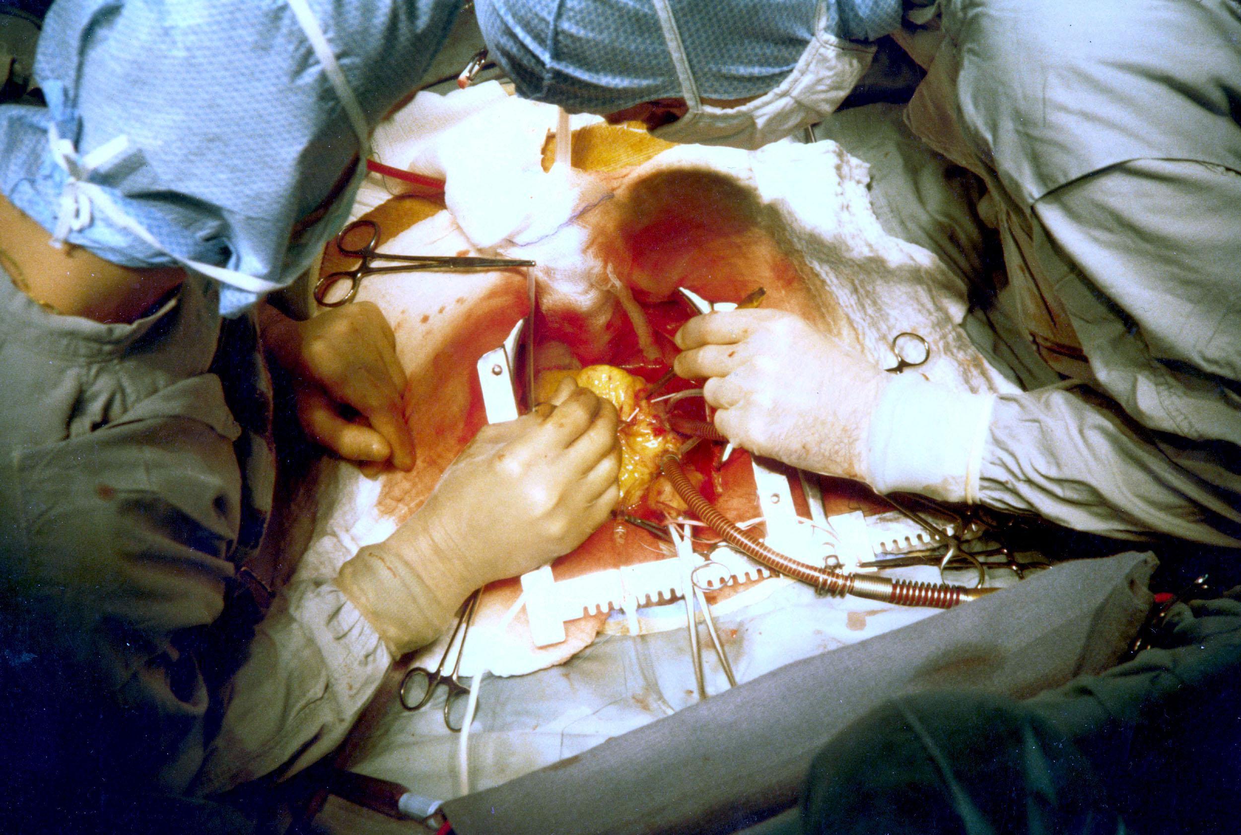 bypass műtét)
