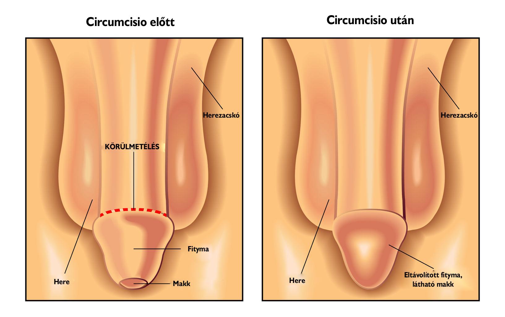 így néz ki az egészséges pénisz