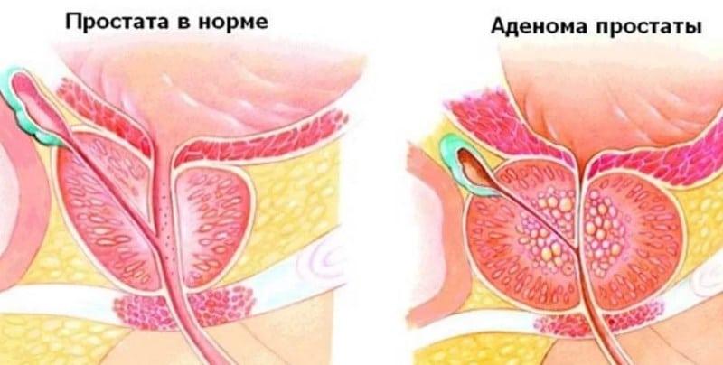Ledokain spray a pénisz fején: a cselekvés elve, jelzések és ellenjavallatok