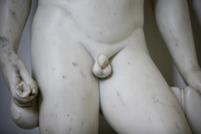 egy péniszes férfi az orvosnál
